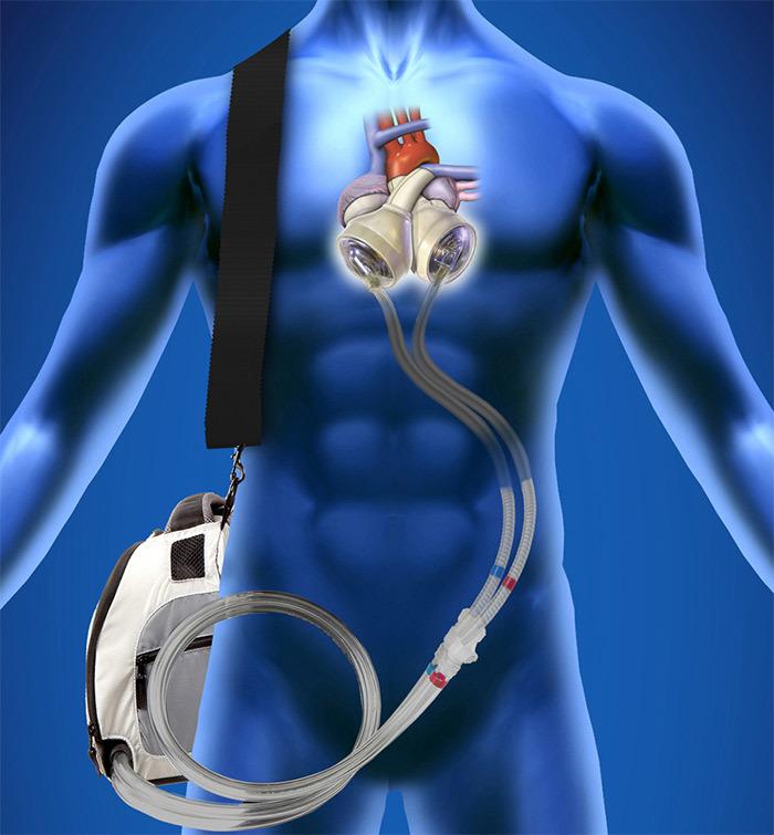 SynCardia - искусственное сердце для ожидающих трансплантации.docx