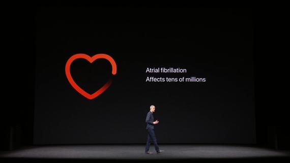 Apple Watch Series 3-SMART-часы фото с презентации